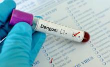 dengue sample
